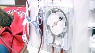 Kidney Dialysis Ratings
