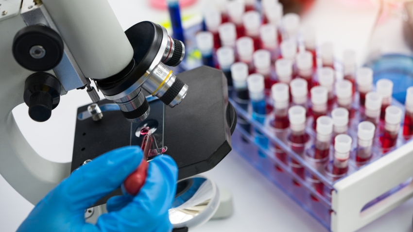 Scientist using microscope conducting genetic research of blood sample in laboratory.
