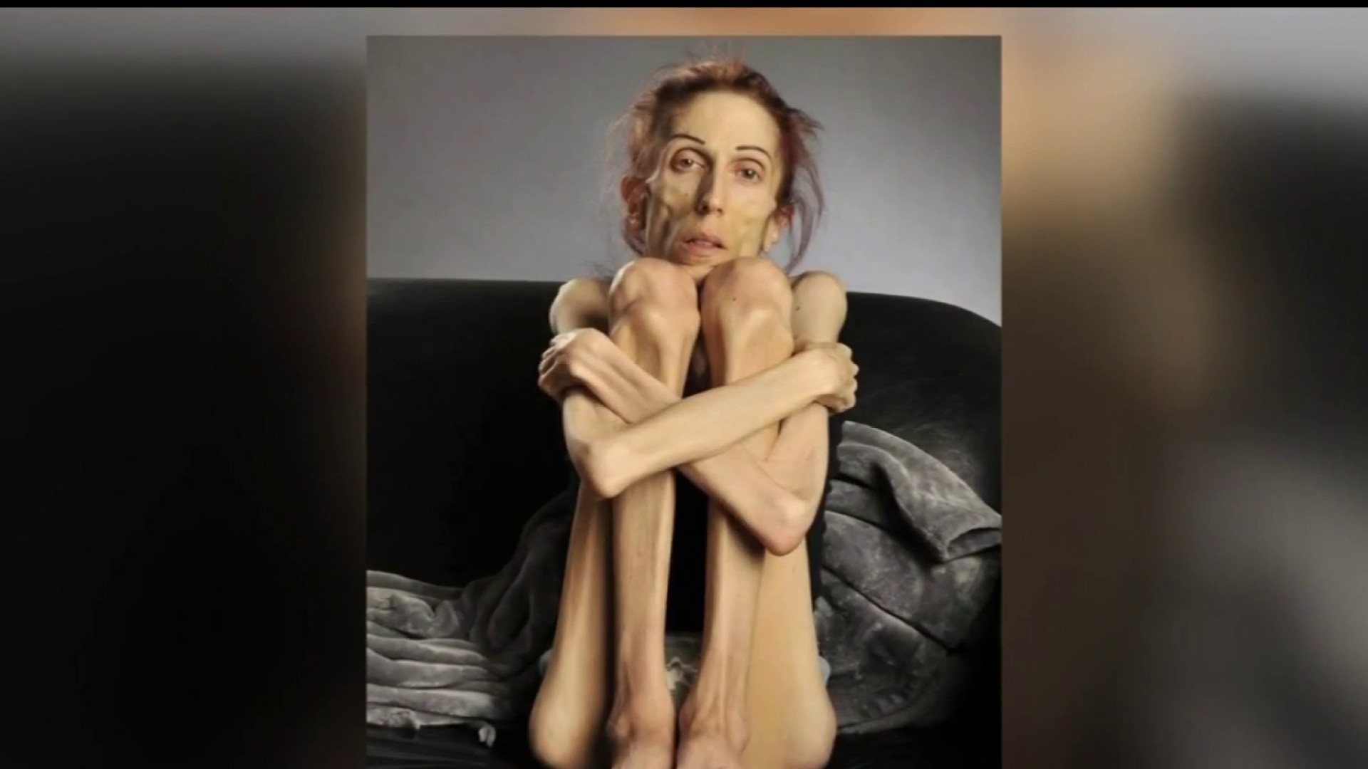 Eating Disorders Spike During Pandemic