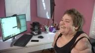OC Meningitis Survivor Connects With Strangers Online