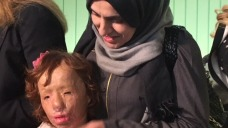 Girls Bombed in Syrian Acid Attacks to Get Surgery in LA