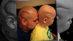 Boy's Cancer Scar Inspires Dad's Tattoo