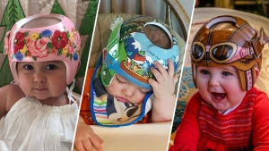 Photos: Artist Transforms Baby Helmets Into Dazzling Works of Art