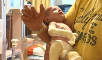OC Newborn Suffering From Painful Rare Disease