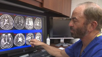 Stroke Patient Walks After Stem Cell Injections, Stunning Researchers