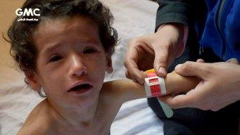 UN Calls for Urgent Evacuation of 137 Sick Syrian Children