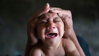 3 Babies Born in US With Birth Defects Caused by Zika: CDC