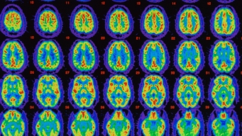 UCSD Researchers ID Gene That Could Prevent Brain Diseases