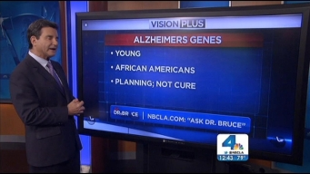 Ask Dr. Bruce: Alzheimers Myths, Lung Cancer Cure