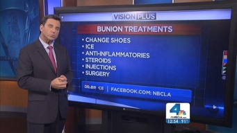 Ask Dr. Bruce: Bunion Treatment; Acetaminophen's Effect on Liver