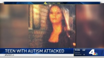 Mother Defends Son With Autism From Attackers