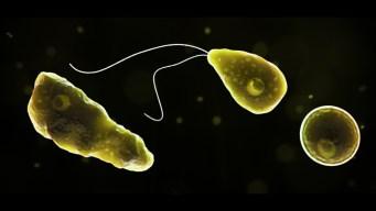 Brain-Eating Amoeba Kills Man Who Swam in NC Manmade Lake