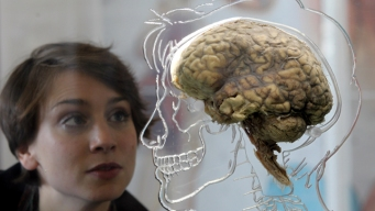 Getting to the Heart of the Brain