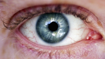 New Noninvasive Eye Scan Could Detect Signs of Alzheimer's