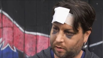 Drag Queen Attacked in San Francisco Near Gay Bar
