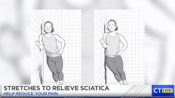 Exercises to Ease Sciatica Pain
