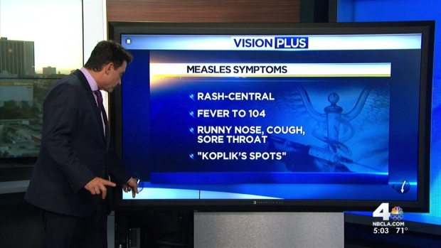 [LA] Vaccination Key to Protecting Against Measles Outbreak