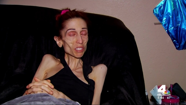 [LA] Woman Battling Anorexia Pleads For Help in Video