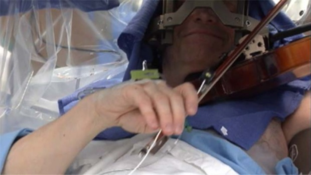 [LA] Awake Brain Surgery Lets Violinist Play While Doctors Work