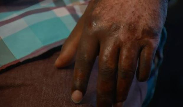 [LA] Big Rig Crash Survivor Fights for Peaceful Night's Sleep
