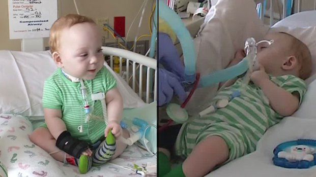 [DFW] Formerly Conjoined Twins Go Home