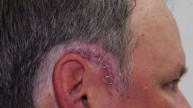 UCLA Surgery Cures Coach's Rare Hearing Condition