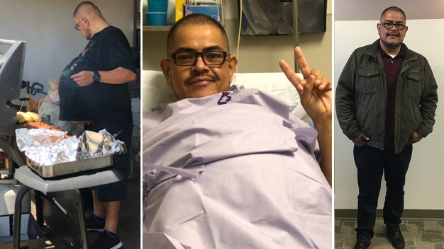 Downey Man's Gut Turns Out to Be 77-Pound Cancerous Tumor