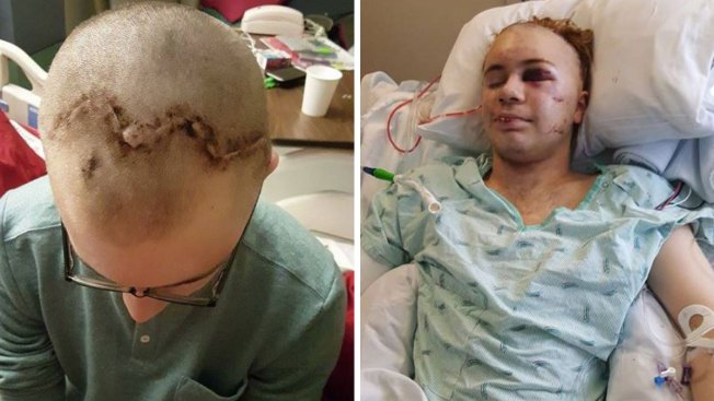 'Duct Tape Challenge' Leaves Washington Teen Severely Injured