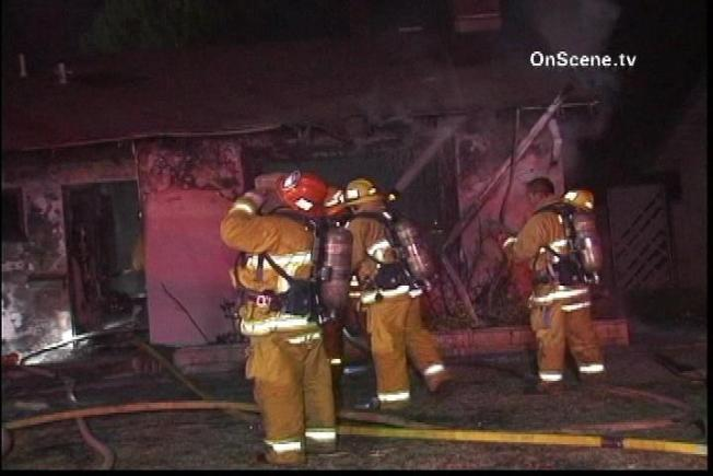 Man Burned in West Hills House Fire