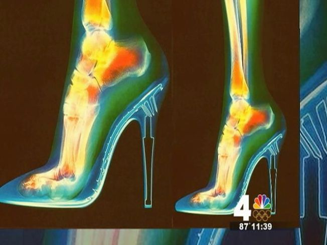 Dangers of High Heels