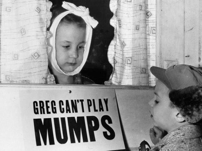 Mumps on Rise in L.A. County