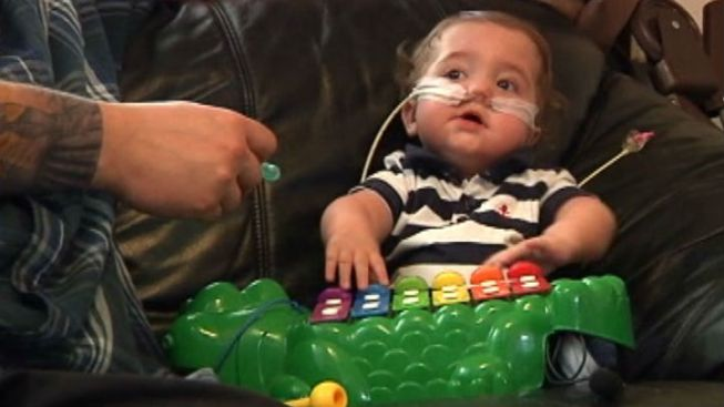 """""""Miracle"""" Baby With Rare Medical Condition to Celebrate 1st Birthday"""