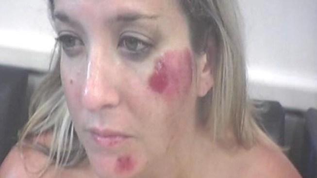 Woman Who Alleged Rough Arrest Sues LAPD