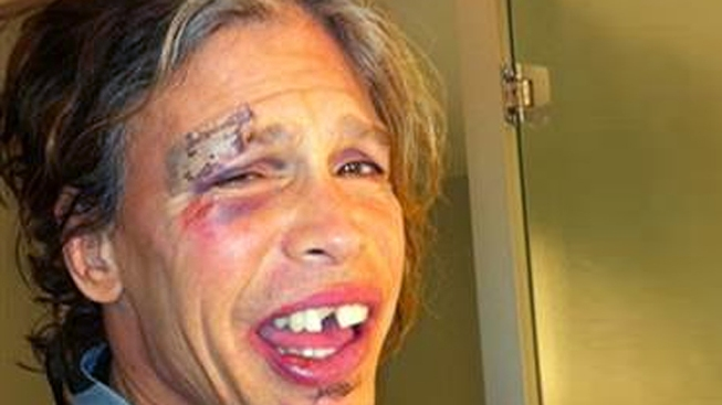 "Steven Tyler on Paraguay Fall: ""I Passed Out"""