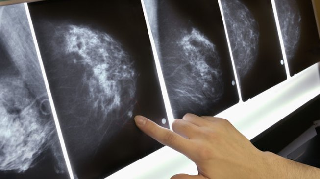 Breast Cancer at the Age of 24