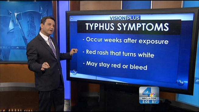 Health officials in Orange County are working hard to stop a single incident of typhus from becoming an outbreak. But what is typhus and how do you spot it? Dr. Bruce Hensel explains the symptoms and treatment during the NBC4 News at 5 p.m. on May 29, 2012.