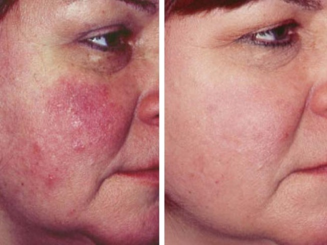 New Acne Medication Approved Nbc Southern California