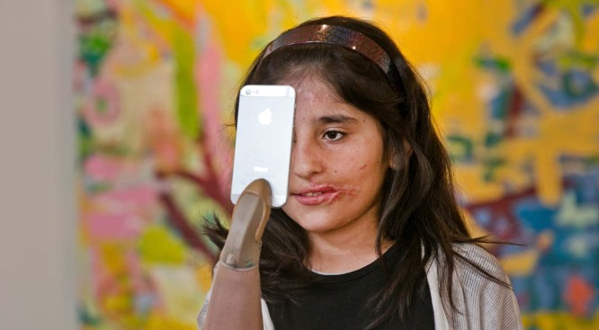 Badly Wounded Afghan Girl Finishes Treatment in LA