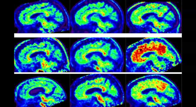 Think About This: Meditation Might Boost Brain Power