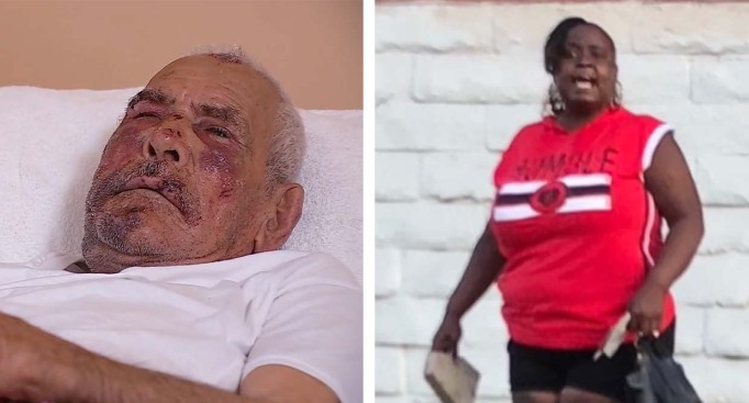 Woman Arrested in Beating of 92-Year-Old Man Who Was Struck With Concrete Brick