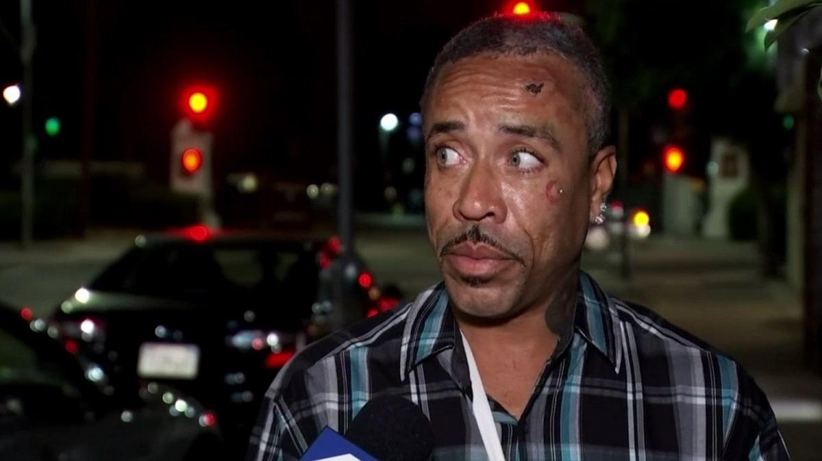 Santa Monica Homeless Attack Survivor Speaks for First Time