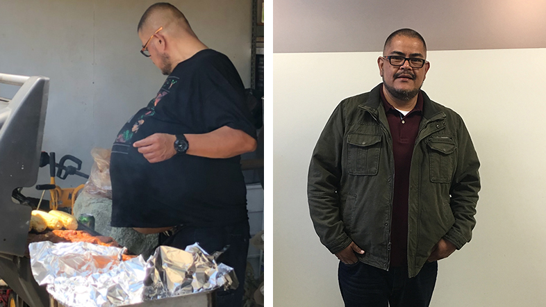 Hector Hernandez thought his large gut, as seen in the image to the left, was just fat that wouldn't come off. He later learned it was a cancerous tumor, weighing 77 pounds.